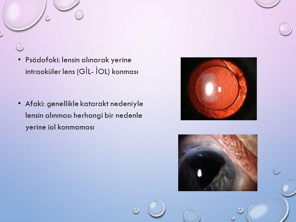 Psödofaki: lensin alınarak yerine intraoküler lens (G İ L- İ OL) konması Afaki: genellikle katarakt nedeniyle lensin alınması herhangi bir nedenle yer