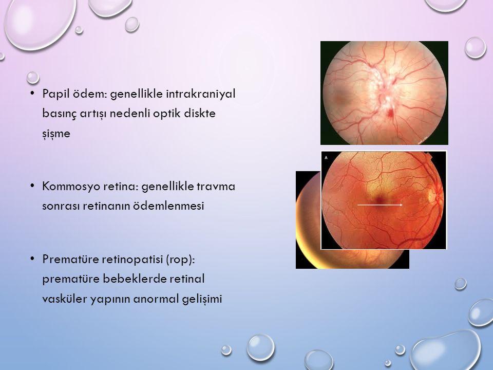 Papil ödem: genellikle intrakraniyal basınç artışı nedenli optik diskte şişme Kommosyo retina: genellikle travma sonrası retinanın ödemlenmesi Prematü
