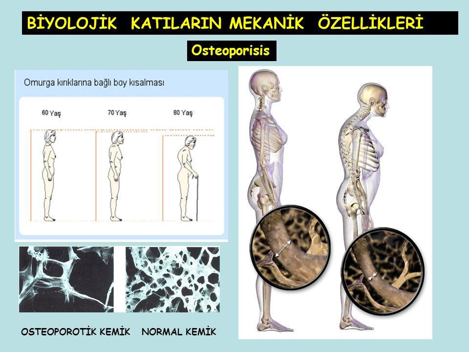 OSTEOPOROTİK KEMİK NORMAL KEMİK Osteoporisis BİYOLOJİK KATILARIN MEKANİK ÖZELLİKLERİ