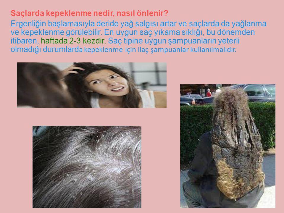 Saçlarda kepeklenme nedir, nasıl önlenir.