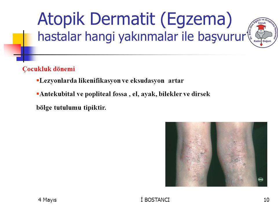 4 Mayıs Çocukluk dönemi  Lezyonlarda likenifikasyon ve eksudasyon artar  Antekubital ve popliteal fossa, el, ayak, bilekler ve dirsek bölge tutulumu