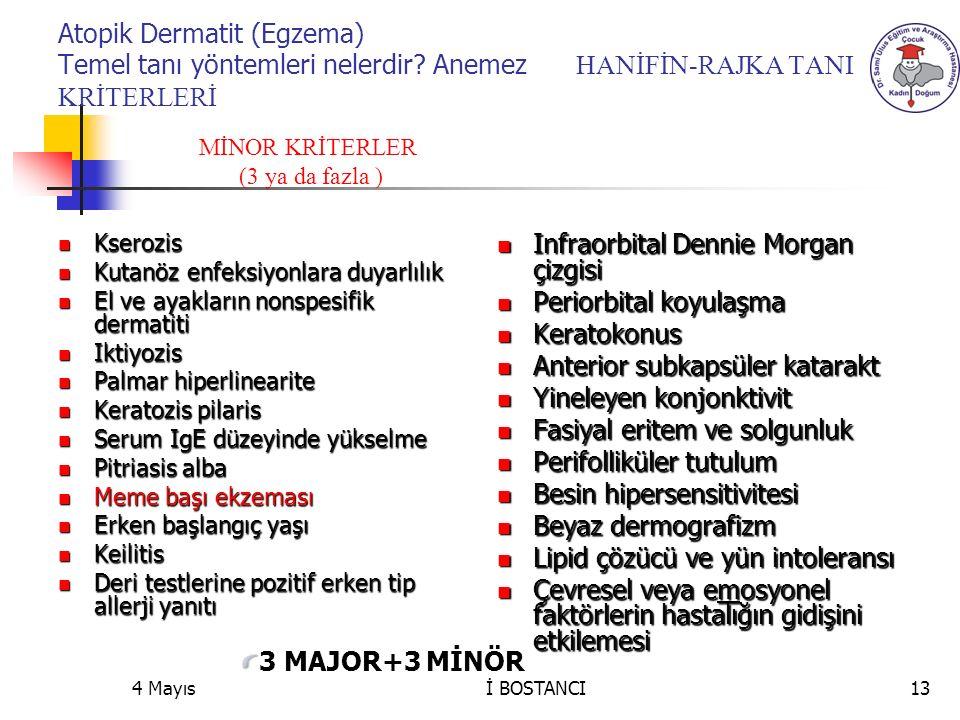 Atopik Dermatit (Egzema) Temel tanı yöntemleri nelerdir? Anemez HANİFİN-RAJKA TANI KRİTERLERİ Kserozis Kserozis Kutanöz enfeksiyonlara duyarlılık Kuta