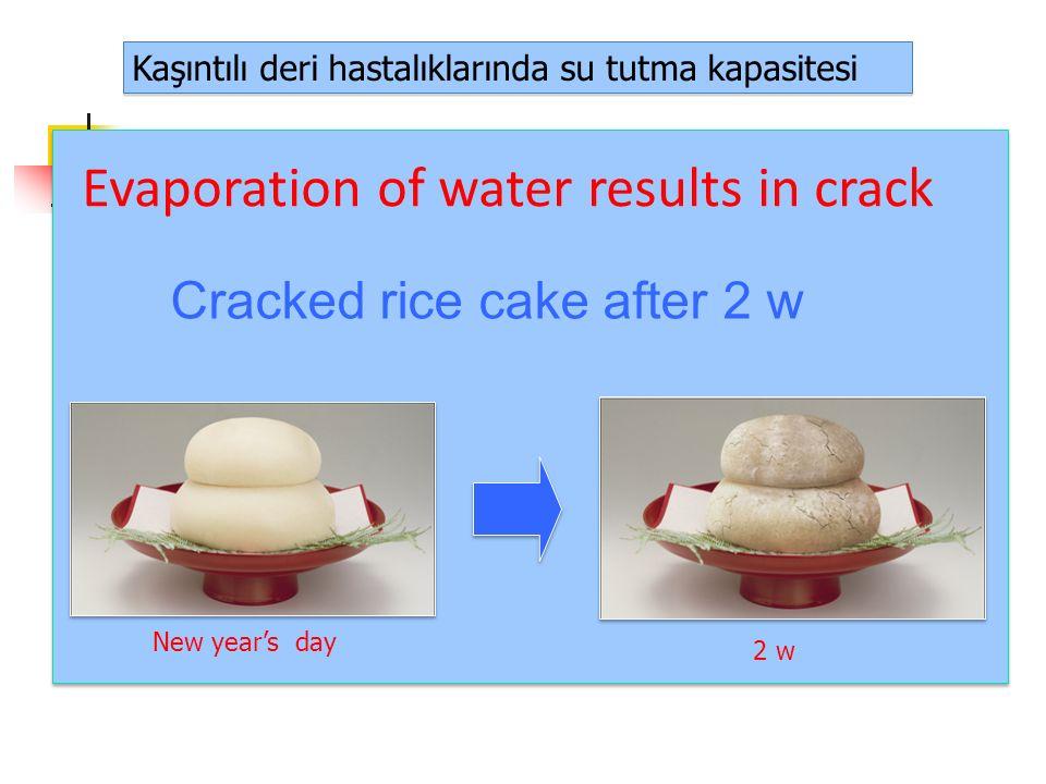 Kaşıntılı deri hastalıklarında su tutma kapasitesi Atopic dermatitis Xerotic eczema Evaporation of water results in crack Cracked rice cake after 2 w