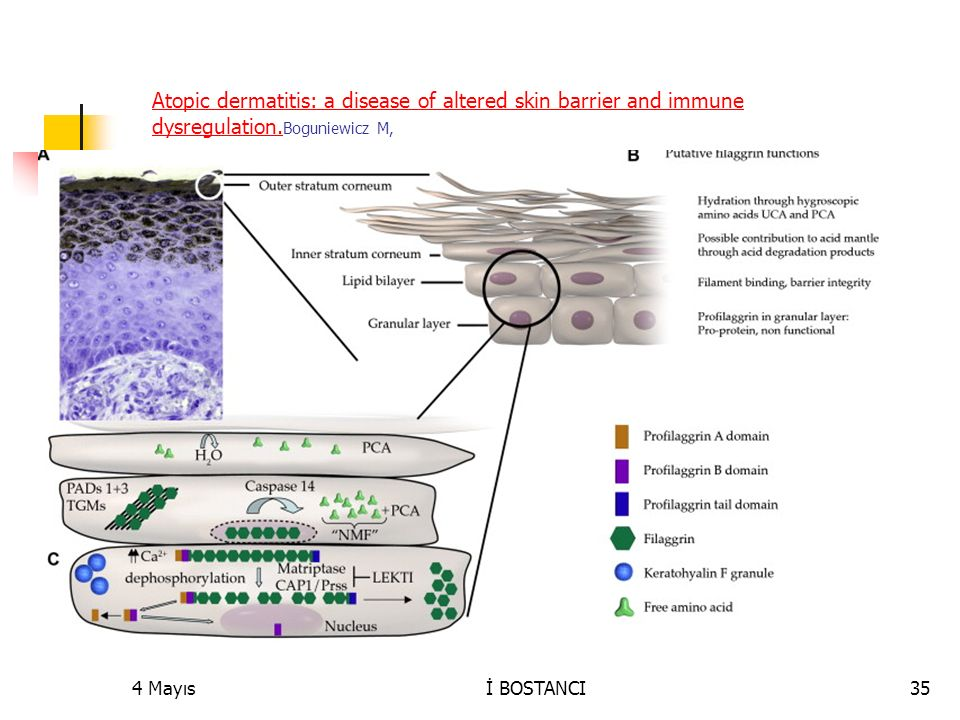 Atopic dermatitis: a disease of altered skin barrier and immune dysregulation. Atopic dermatitis: a disease of altered skin barrier and immune dysregu
