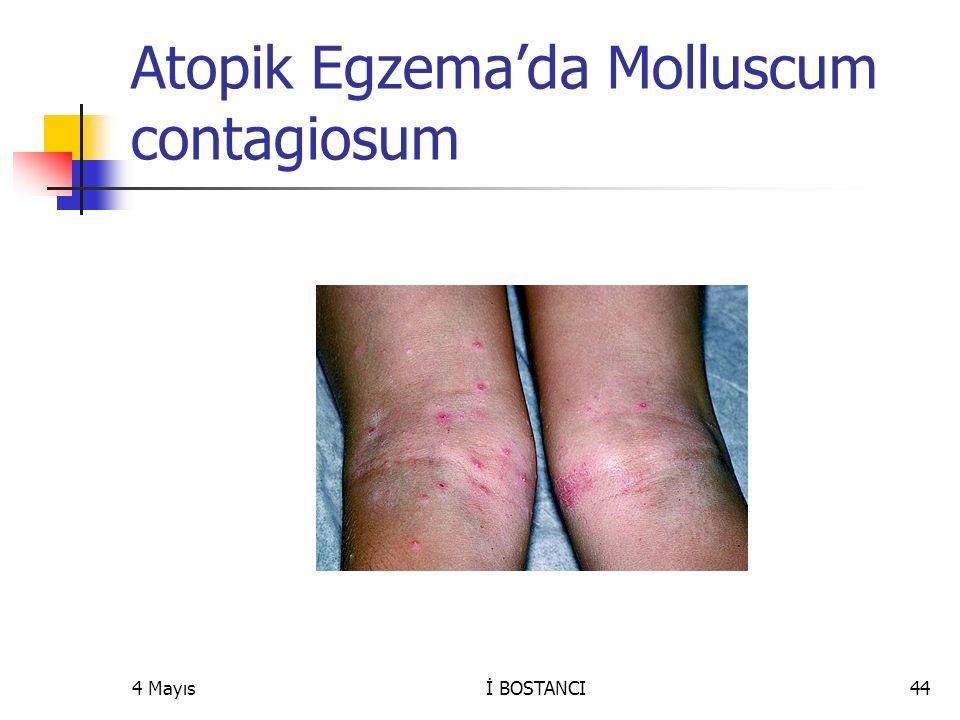 Atopik Egzema'da Molluscum contagiosum 4 Mayısİ BOSTANCI44