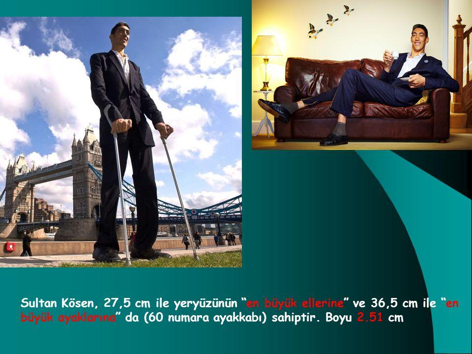 """Sultan Kösen, 27,5 cm ile yeryüzünün """"en büyük ellerine"""" ve 36,5 cm ile """"en büyük ayaklarına"""" da (60 numara ayakkabı) sahiptir. Boyu 2.51 cm"""