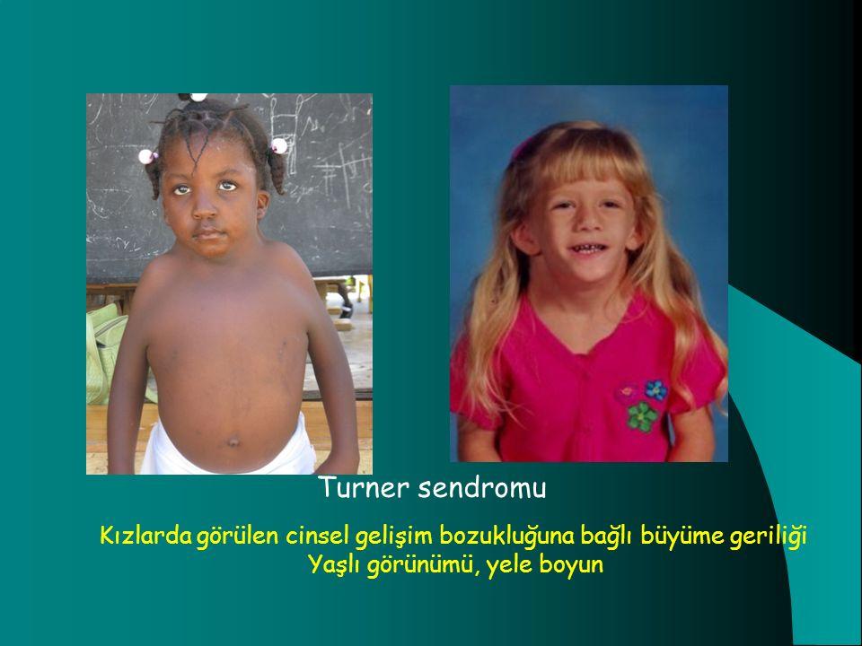 Turner sendromu Kızlarda görülen cinsel gelişim bozukluğuna bağlı büyüme geriliği Yaşlı görünümü, yele boyun