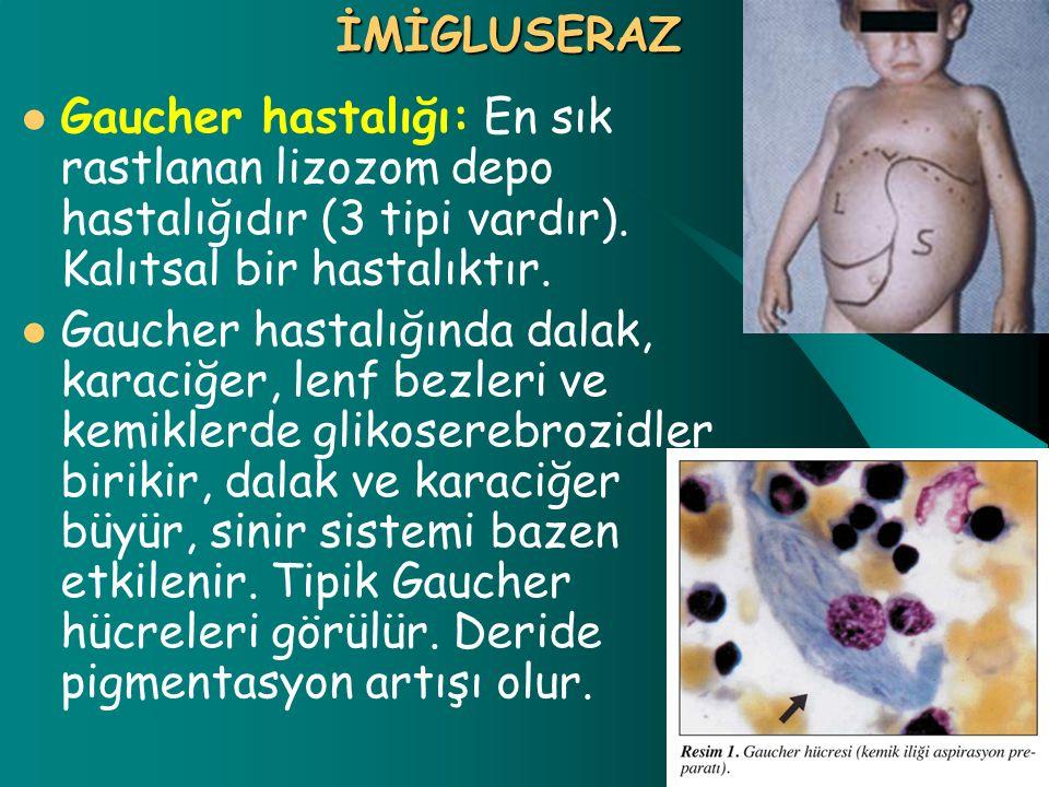 İMİGLUSERAZ Gaucher hastalığı: En sık rastlanan lizozom depo hastalığıdır (3 tipi vardır). Kalıtsal bir hastalıktır. Gaucher hastalığında dalak, karac