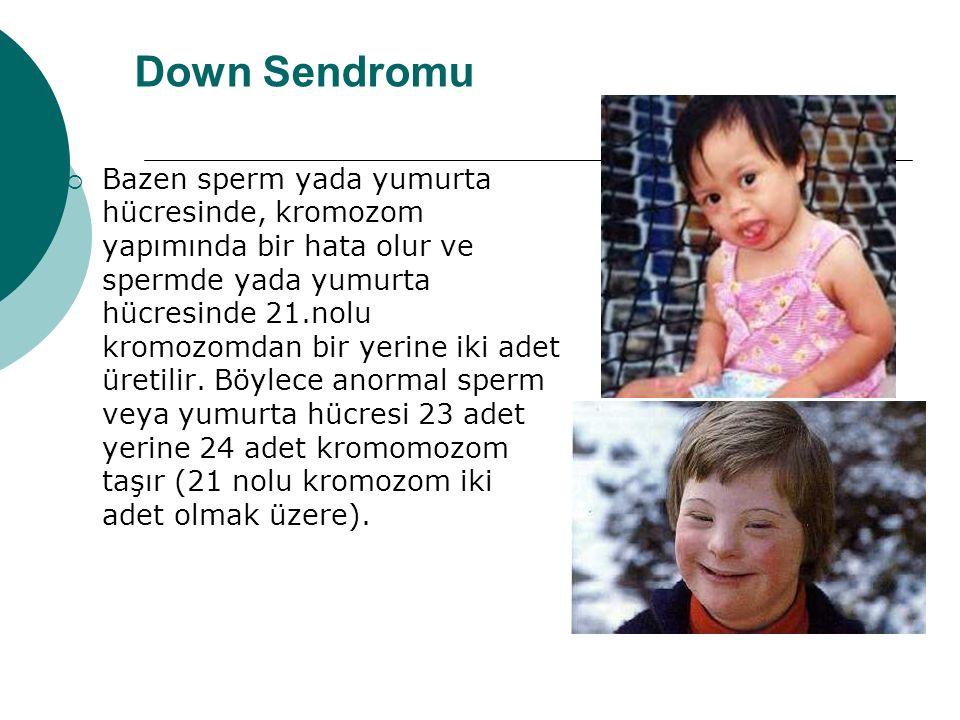 Down Sendromu  Bazen sperm yada yumurta hücresinde, kromozom yapımında bir hata olur ve spermde yada yumurta hücresinde 21.nolu kromozomdan bir yerine iki adet üretilir.