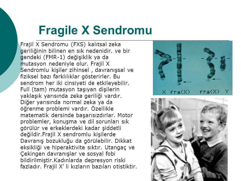 Fragile X Sendromu Frajil X Sendromu (FXS) kalıtsal zeka geriliğinin bilinen en sık nedenidir.