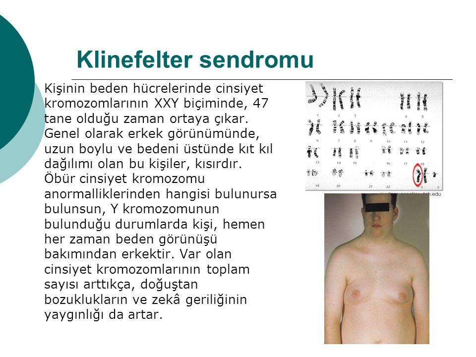Klinefelter sendromu Kişinin beden hücrelerinde cinsiyet kromozomlarının XXY biçiminde, 47 tane olduğu zaman ortaya çıkar.
