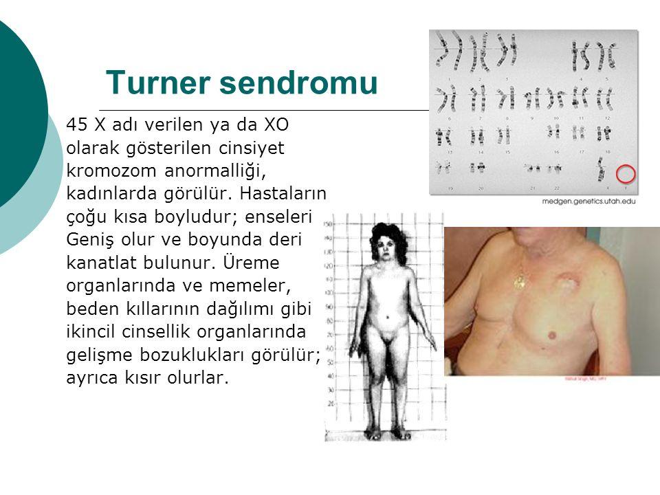 Turner sendromu 45 X adı verilen ya da XO olarak gösterilen cinsiyet kromozom anormalliği, kadınlarda görülür.