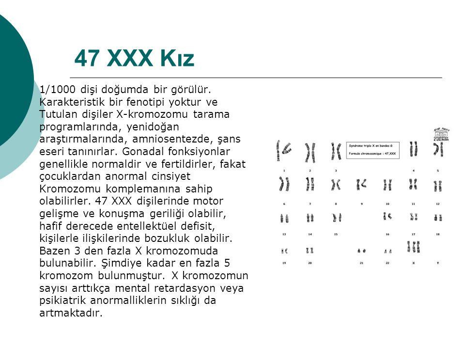 47 XXX Kız 1/1000 dişi doğumda bir görülür.