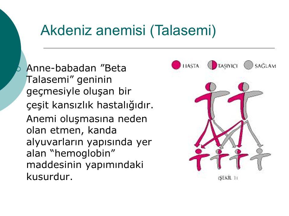  Talasemi Minör (Akdeniz anemisi Taşıyıcılığı) Bireylerdeki tek bulgu sadece kansızlıktır.