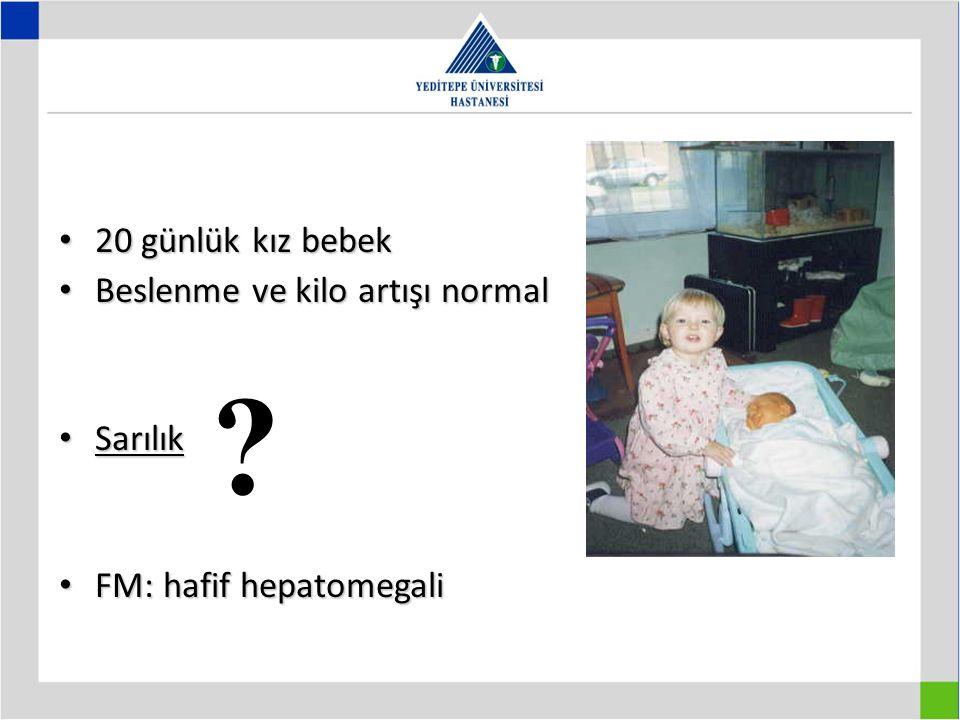 20 günlük kız bebek 20 günlük kız bebek Beslenme ve kilo artışı normal Beslenme ve kilo artışı normal Sarılık Sarılık FM: hafif hepatomegali FM: hafif
