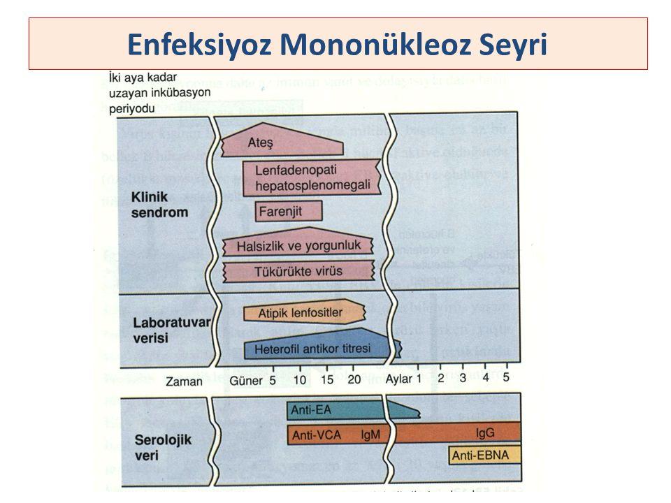 Enfeksiyoz Mononükleoz Seyri