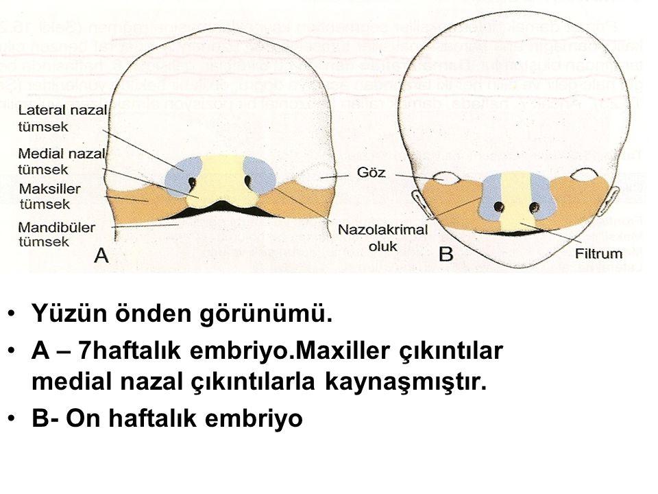 Yüzün önden görünümü. A – 7haftalık embriyo.Maxiller çıkıntılar medial nazal çıkıntılarla kaynaşmıştır. B- On haftalık embriyo