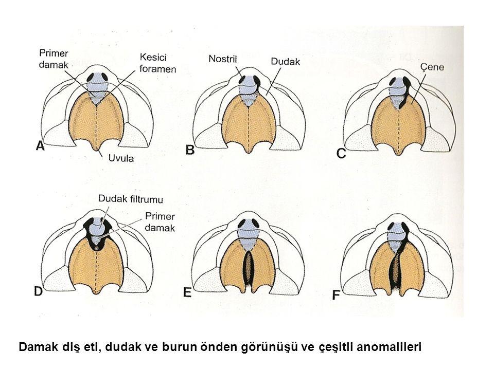 Damak diş eti, dudak ve burun önden görünüşü ve çeşitli anomalileri