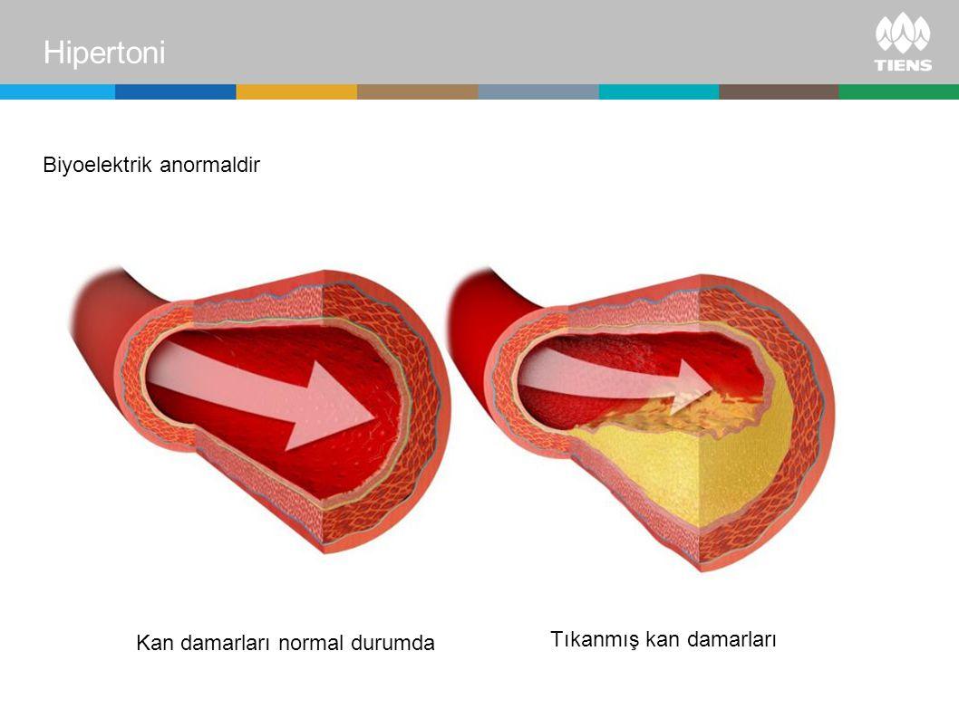 Biyoelektrik anormaldir Tıkanmış kan damarları Hipertoni Kan damarları normal durumda