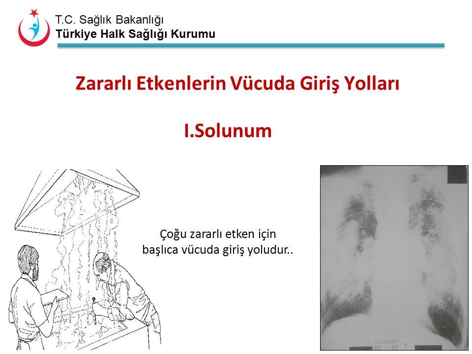T.C. Sağlık Bakanlığı Türkiye Halk Sağlığı Kurumu Zararlı Etkenlerin Vücuda Giriş Yolları I.Solunum Çoğu zararlı etken için başlıca vücuda giriş yolud