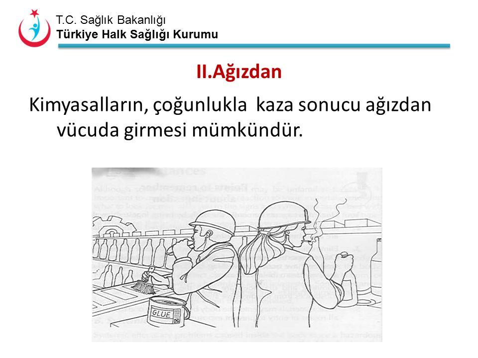 T.C. Sağlık Bakanlığı Türkiye Halk Sağlığı Kurumu II.Ağızdan Kimyasalların, çoğunlukla kaza sonucu ağızdan vücuda girmesi mümkündür.