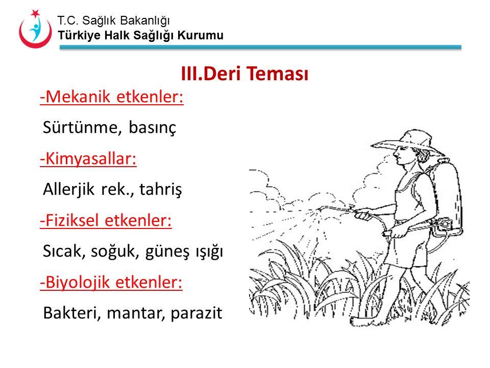 T.C. Sağlık Bakanlığı Türkiye Halk Sağlığı Kurumu III.Deri Teması -Mekanik etkenler: Sürtünme, basınç -Kimyasallar: Allerjik rek., tahriş -Fiziksel et