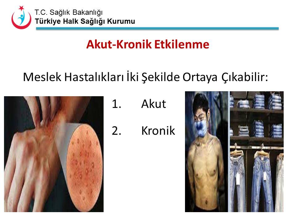 T.C. Sağlık Bakanlığı Türkiye Halk Sağlığı Kurumu Akut-Kronik Etkilenme Meslek Hastalıkları İki Şekilde Ortaya Çıkabilir: 1.Akut 2.Kronik