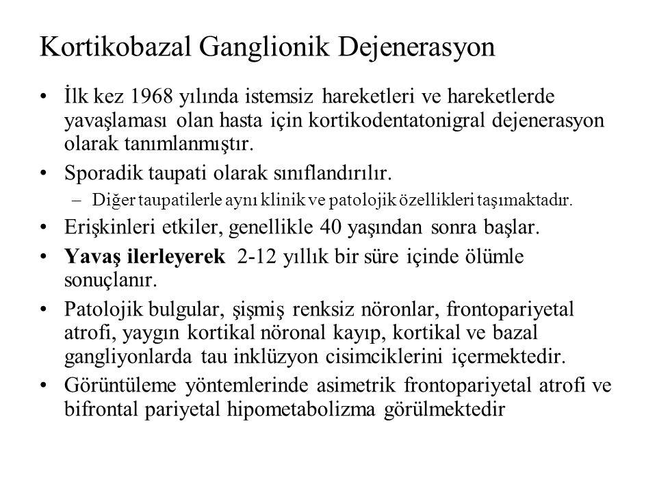 Kortikobazal Ganglionik Dejenerasyon İlk kez 1968 yılında istemsiz hareketleri ve hareketlerde yavaşlaması olan hasta için kortikodentatonigral dejenerasyon olarak tanımlanmıştır.