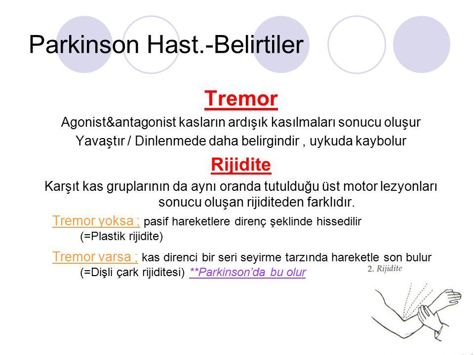 Parkinson Hast.-Belirtiler Tremor Agonist&antagonist kasların ardışık kasılmaları sonucu oluşur Yavaştır / Dinlenmede daha belirgindir, uykuda kaybolu