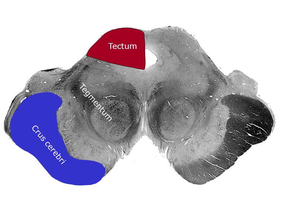 Crus cerebri Tectum Tegmentum
