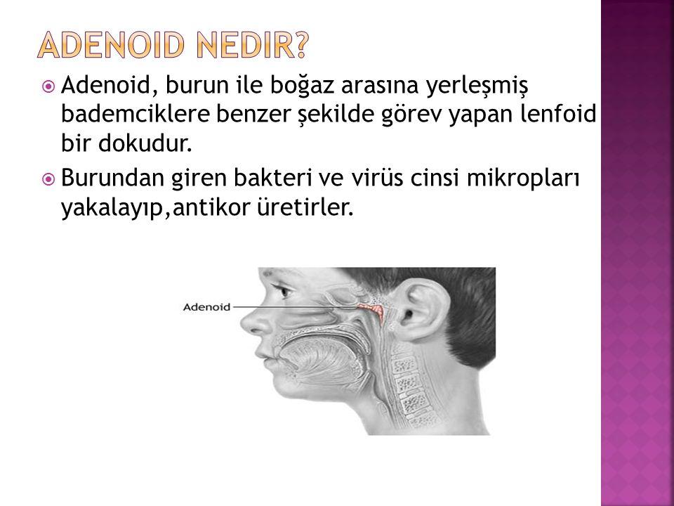  Adenoid, burun ile boğaz arasına yerleşmiş bademciklere benzer şekilde görev yapan lenfoid bir dokudur.