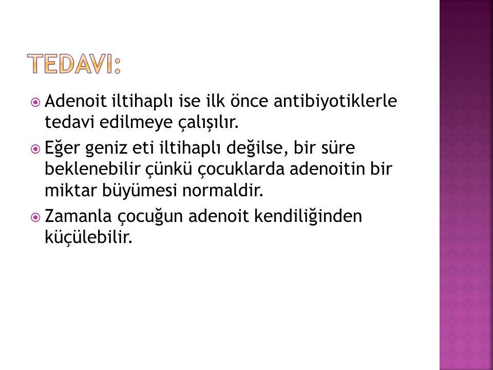  Adenoit iltihaplı ise ilk önce antibiyotiklerle tedavi edilmeye çalışılır.