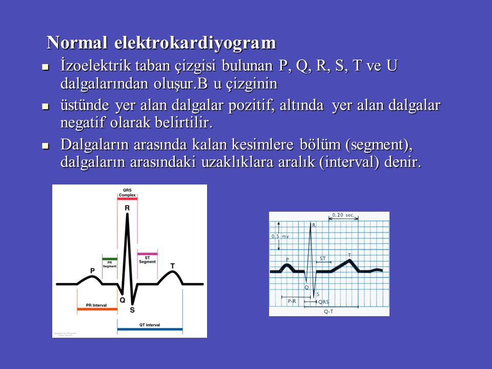 Normal elektrokardiyogram Normal elektrokardiyogram İzoelektrik taban çizgisi bulunan P, Q, R, S, T ve U dalgalarından oluşur.B u çizginin İzoelektrik