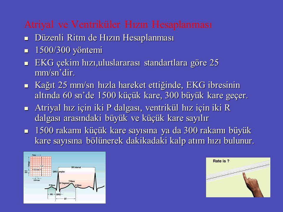 Atriyal ve Ventriküler Hızın Hesaplanması Düzenli Ritm de Hızın Hesaplanması Düzenli Ritm de Hızın Hesaplanması 1500/300 yöntemi 1500/300 yöntemi EKG