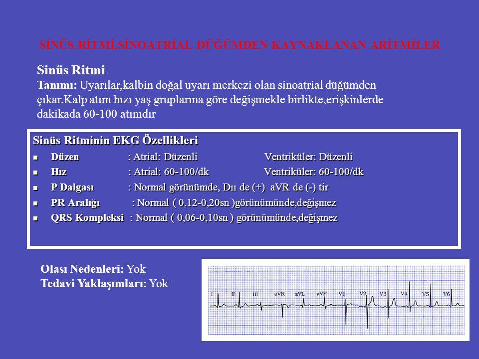 SİNÜS RİTMİ,SİNOATRİAL DÜĞÜMDEN KAYNAKLANAN ARİTMİLER Sinüs Ritminin EKG Özellikleri Düzen : Atrial: Düzenli Ventriküler: Düzenli Düzen : Atrial: Düze