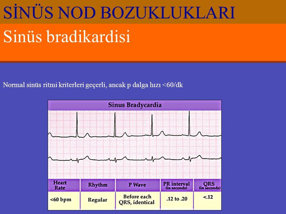 Sinüs bradikardisi Normal sinüs ritmi kriterleri geçerli, ancak p dalga hızı <60/dk SİNÜS NOD BOZUKLUKLARI