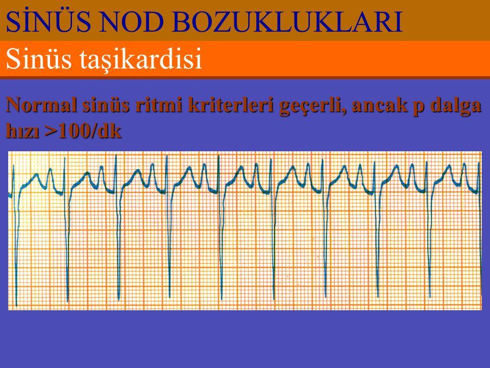 Sinüs taşikardisi Normal sinüs ritmi kriterleri geçerli, ancak p dalga hızı >100/dk SİNÜS NOD BOZUKLUKLARI