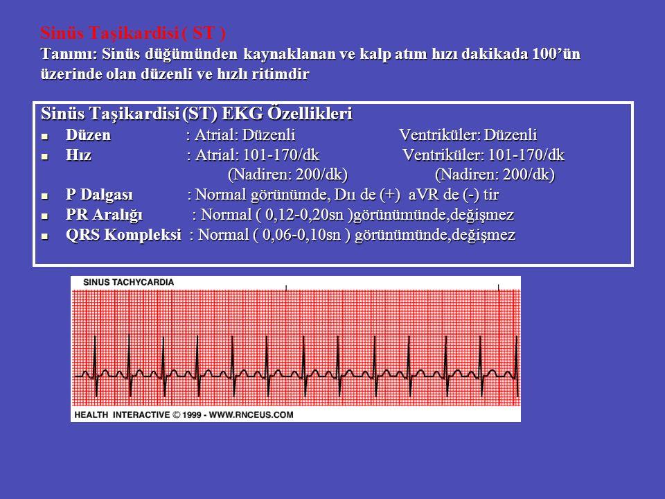 Tanımı: Sinüs düğümünden kaynaklanan ve kalp atım hızı dakikada 100'ün üzerinde olan düzenli ve hızlı ritimdir Sinüs Taşikardisi ( ST ) Tanımı: Sinüs