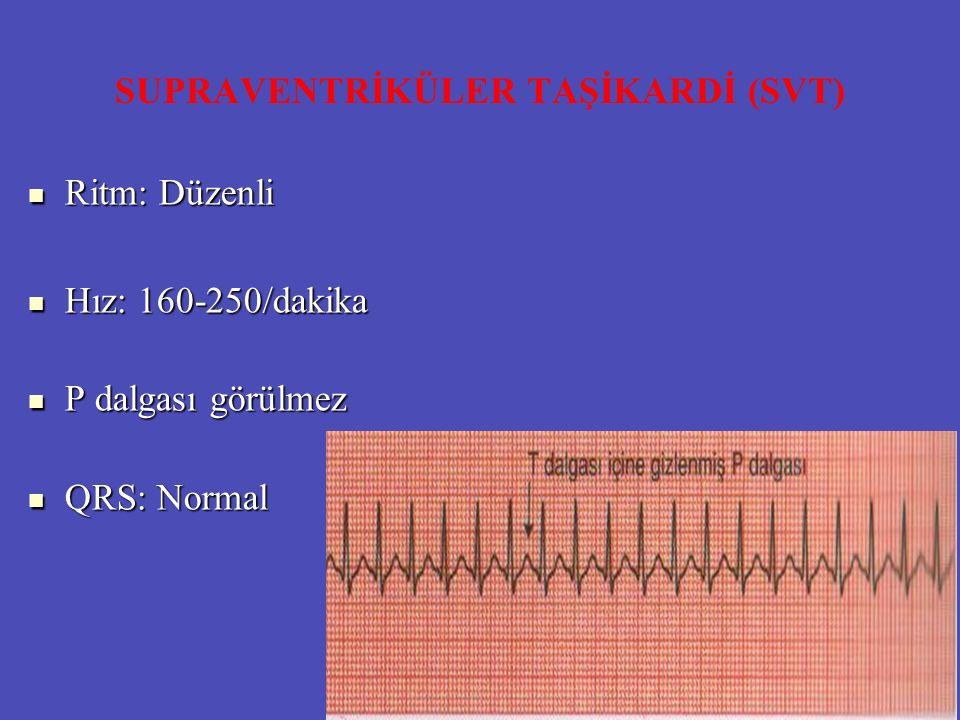 SUPRAVENTRİKÜLER TAŞİKARDİ (SVT) Ritm: Düzenli Ritm: Düzenli Hız: 160-250/dakika Hız: 160-250/dakika P dalgası görülmez P dalgası görülmez QRS: Normal