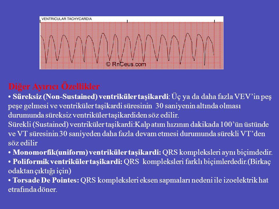 Diğer Ayırıcı Özellikler Süreksiz (Non-Sustained) ventriküler taşikardi: Üç ya da daha fazla VEV'in peş peşe gelmesi ve ventriküler taşikardi süresini