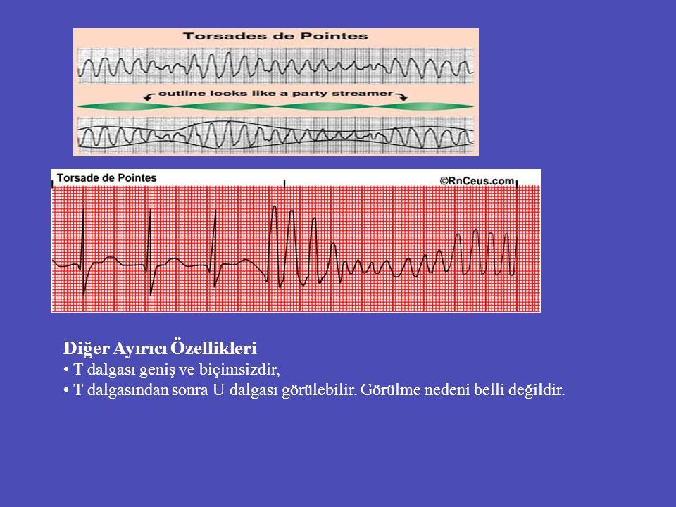 Diğer Ayırıcı Özellikleri T dalgası geniş ve biçimsizdir, T dalgasından sonra U dalgası görülebilir. Görülme nedeni belli değildir.
