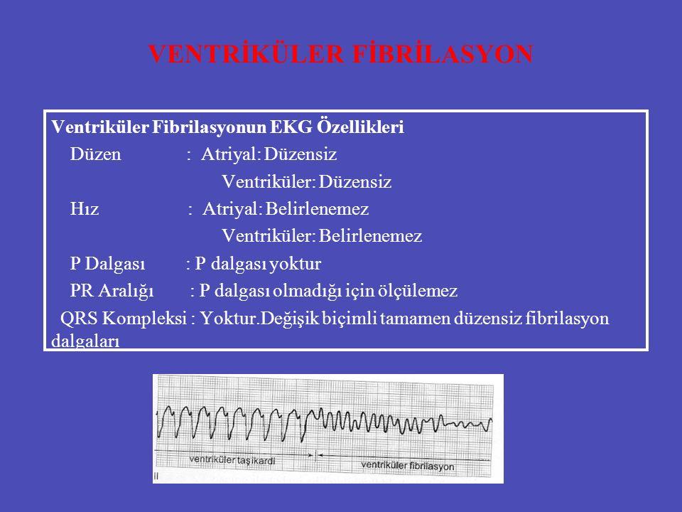 VENTRİKÜLER FİBRİLASYON Ventriküler Fibrilasyonun EKG Özellikleri Düzen : Atriyal: Düzensiz Ventriküler: Düzensiz Hız : Atriyal: Belirlenemez Ventrikü