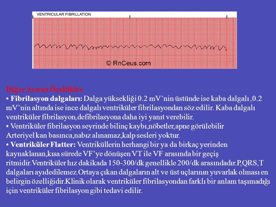 Diğer Ayırıcı Özellikler Fibrilasyon dalgaları: Dalga yüksekliği 0.2 mV'nin üstünde ise kaba dalgalı,0.2 mV'nin altında ise ince dalgalı ventriküler f