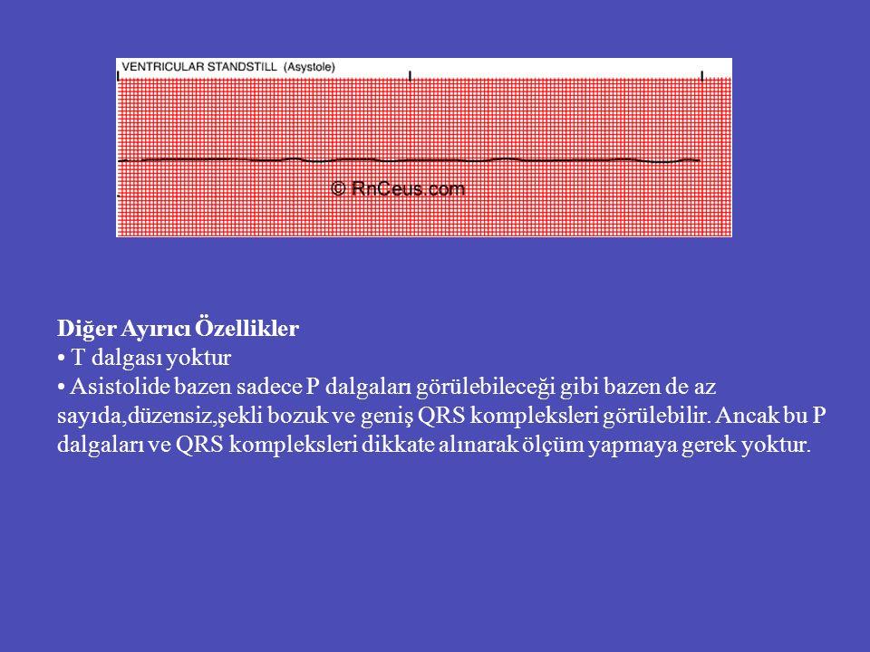 Diğer Ayırıcı Özellikler T dalgası yoktur Asistolide bazen sadece P dalgaları görülebileceği gibi bazen de az sayıda,düzensiz,şekli bozuk ve geniş QRS