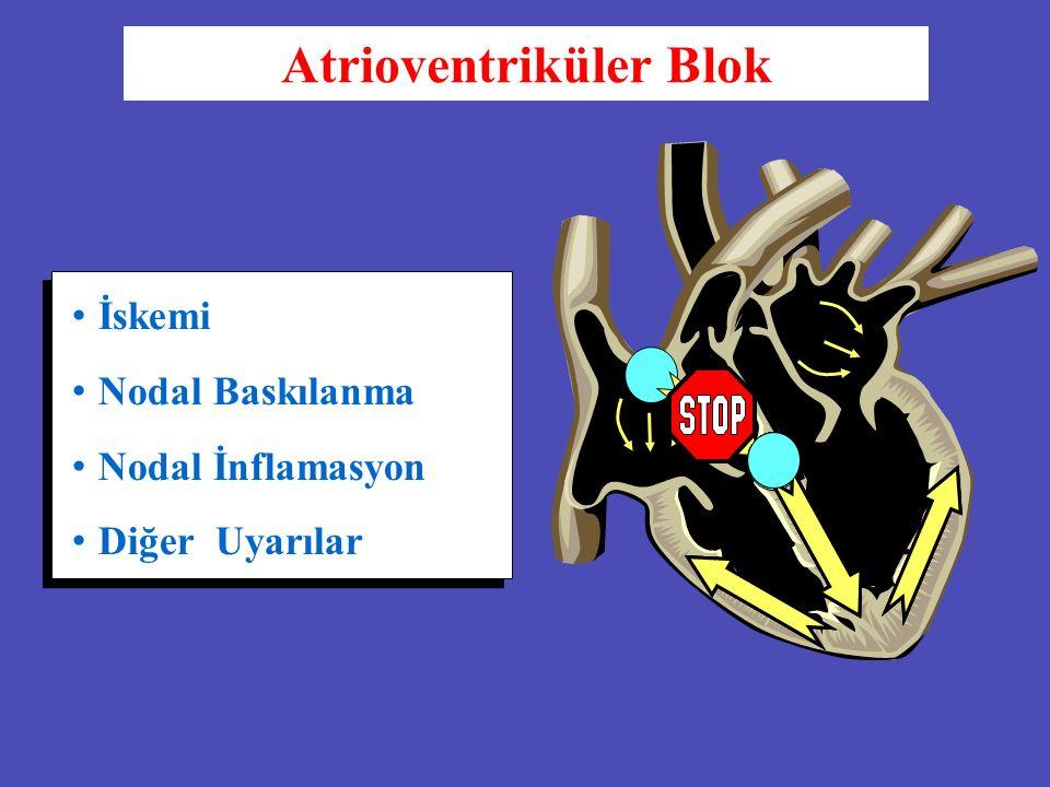 İskemi Nodal Baskılanma Nodal İnflamasyon Diğer Uyarılar Atrioventriküler Blok