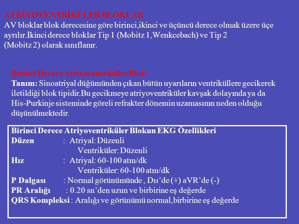 ATRİYOVENTRİKÜLER BLOKLAR AV bloklar blok derecesine göre birinci,ikinci ve üçüncü derece olmak üzere üçe ayrılır.İkinci derece bloklar Tip 1 (Mobitz