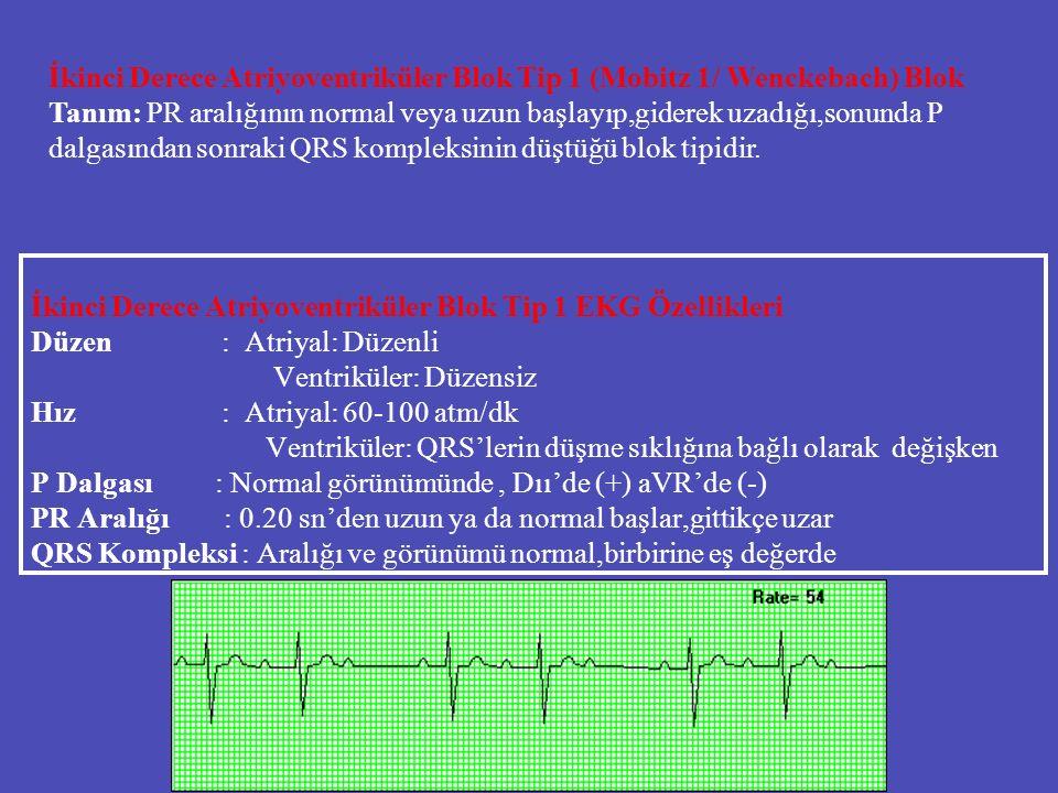İkinci Derece Atriyoventriküler Blok Tip 1 EKG Özellikleri Düzen : Atriyal: Düzenli Ventriküler: Düzensiz Hız : Atriyal: 60-100 atm/dk Ventriküler: QR