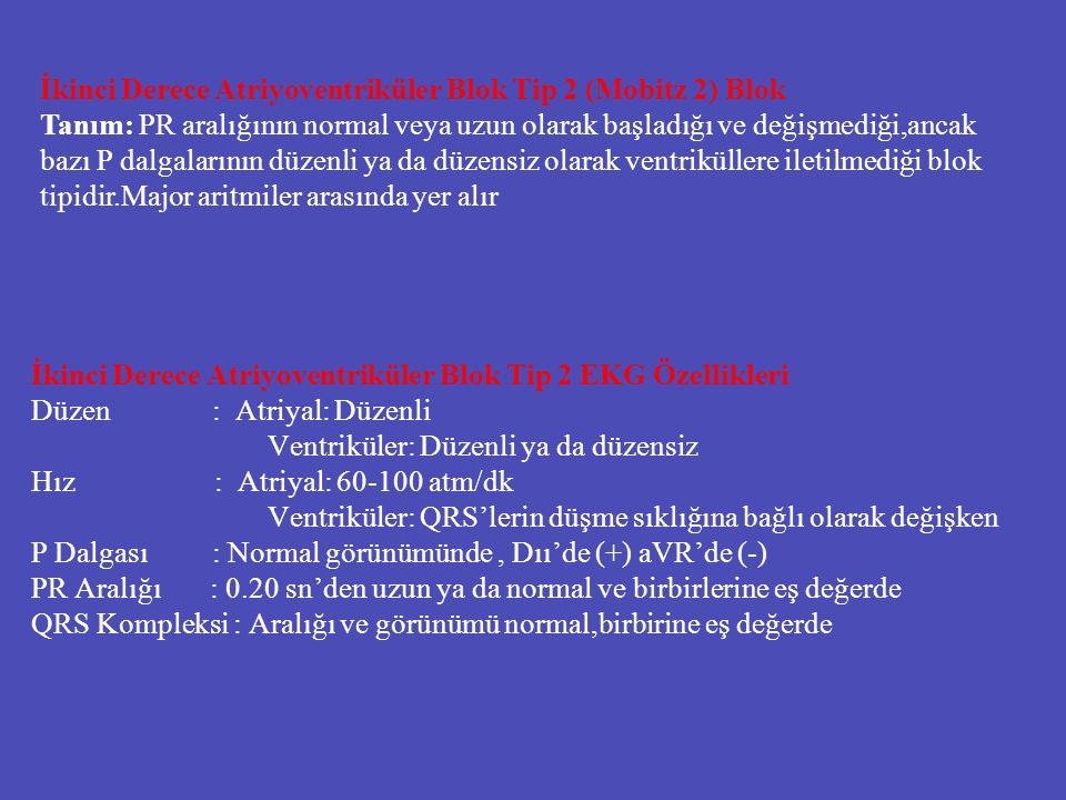 İkinci Derece Atriyoventriküler Blok Tip 2 EKG Özellikleri Düzen : Atriyal: Düzenli Ventriküler: Düzenli ya da düzensiz Hız : Atriyal: 60-100 atm/dk V