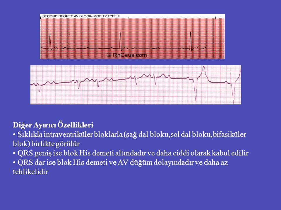 Diğer Ayırıcı Özellikleri Sıklıkla intraventriküler bloklarla (sağ dal bloku,sol dal bloku,bifasiküler blok) birlikte görülür QRS geniş ise blok His d