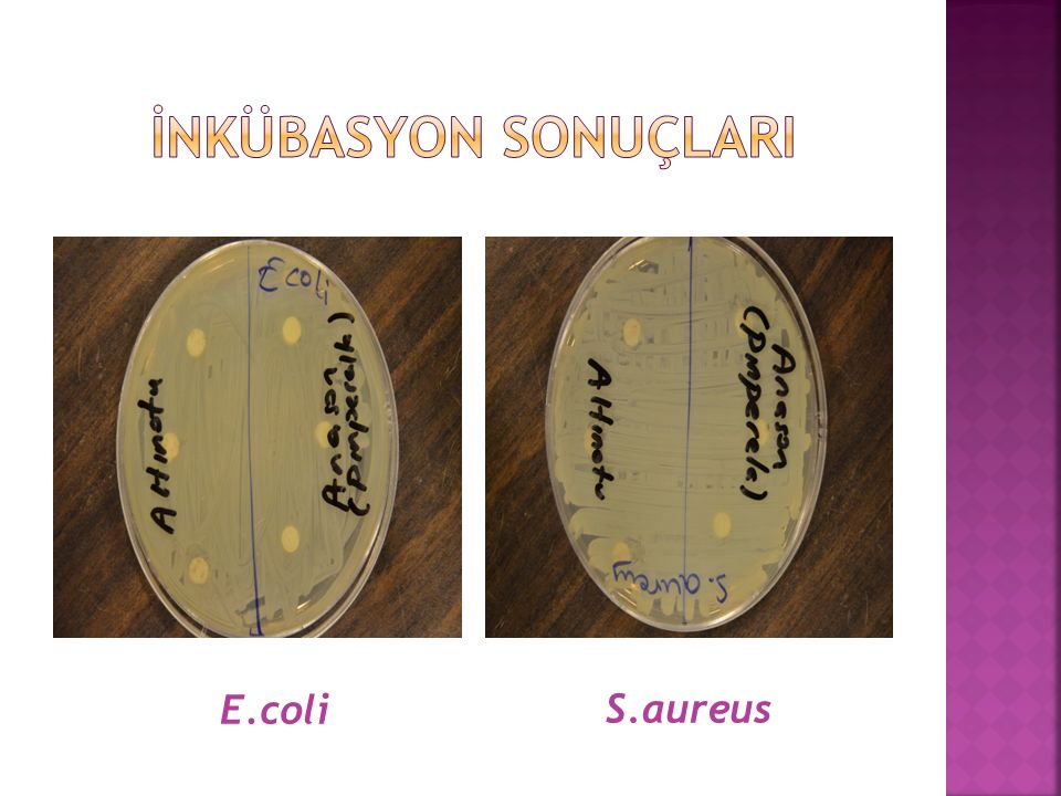 E.coli S.aureus